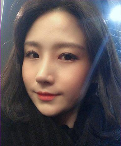 韩国驼峰鼻矫正案例对比