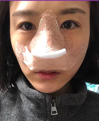 驼峰鼻矫正术后即刻