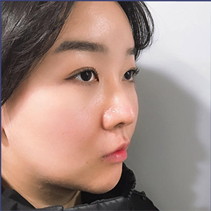 去韩国整鼻子找哪家医院