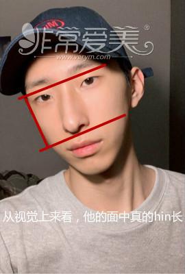 韩国男生隆鼻照片