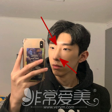韓國男士隆鼻項目介紹