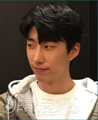 韩国男生隆鼻经历