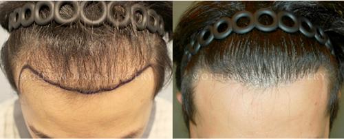 韩国毛杰琳整形医院毛发移植案例效果对比图