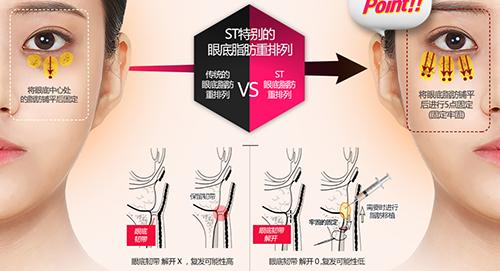 韩国ST整形外科眼袋手术原理图