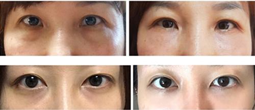 韩国ST整形医院去眼袋手术案例效果对比图
