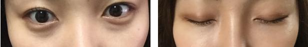 韩国ST整形医院去眼袋黑眼圈效果对比图