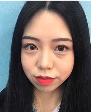 韩国K-angle祛眼袋整形效果