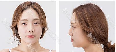 鼻部整形术前照