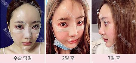 韩国queenspark整形外科鼻手术恢复日记