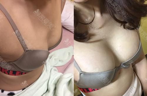 韓國migo假體隆胸真人案例圖