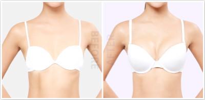 韩国原辰整形外科假体隆胸