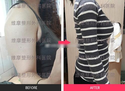 韓國維摩整形外科手臂吸脂案例圖