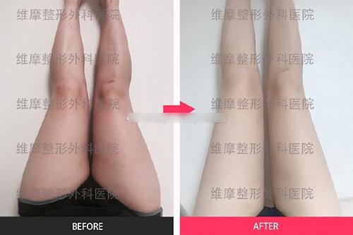 韩国维摩整形外科大腿吸脂案例图