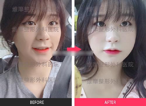 韓國維摩整形外科面部填充案例圖