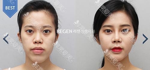 韩国丽珍整形医院双鄂手术案例效果对比图