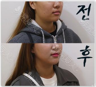 raffine韩国整形外科下颌缘吸脂对比