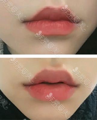韩国raffine整形外科玻尿酸丰唇