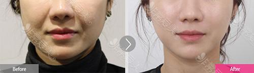 smile提升+下颌吸脂手术对比案例