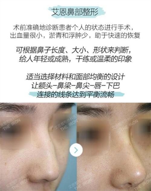 韓國艾恩鼻部整形優勢介紹圖