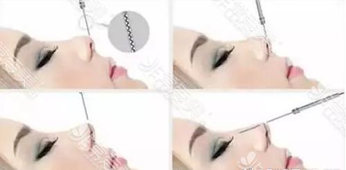 线雕鼻手术方式