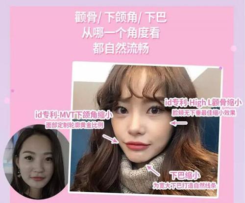 韓國ID整形外科輪廓三件套手術示意圖