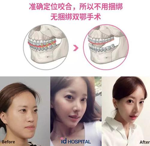 韓國ID整形外科地包天手術照片