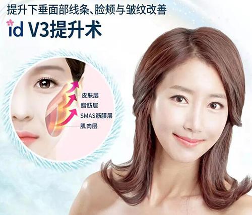 韓國ID整形外科面部提升照片