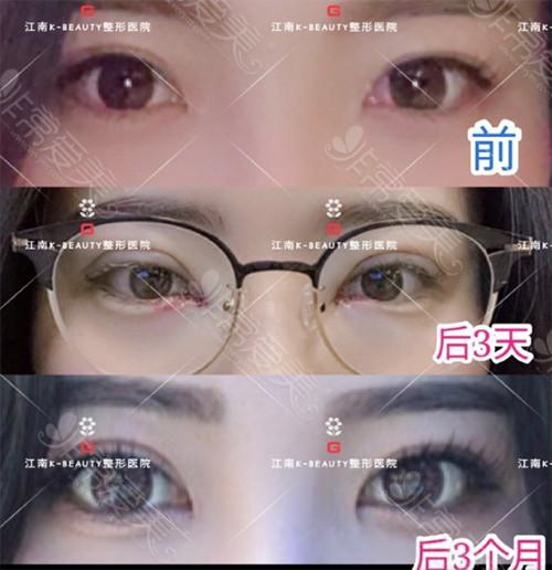 江南k-beauty整形外科眼见矫正手术对比案例