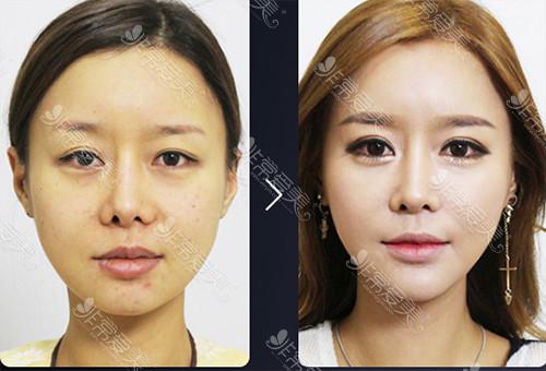 韩国江南kbeauty眼部整形手术对比案例
