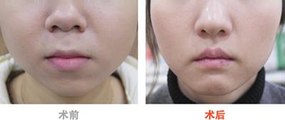 韩国4ever整形外科面部提升手术对比案例