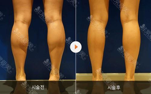 怎么样才能让腿变瘦