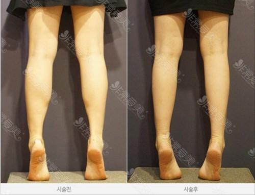 怎么有效瘦小腿