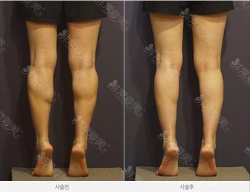 怎么样才能让腿变瘦案例图