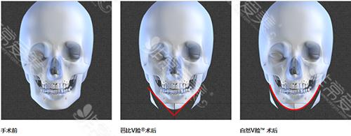 芭比V脸和自然V脸效果对比图