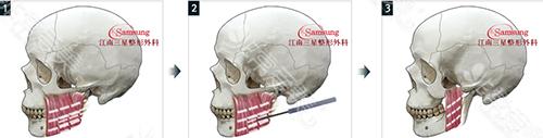 高频缩小术手术方法