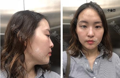 鼻部整形术前效果图