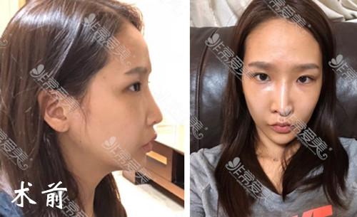 假体隆鼻有什么坏处