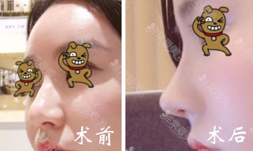 韩国鼻部整形真人前后效果图