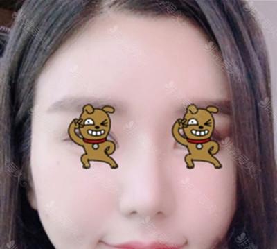 鼻整形案例图