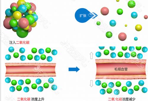 二氧化碳溶脂原理