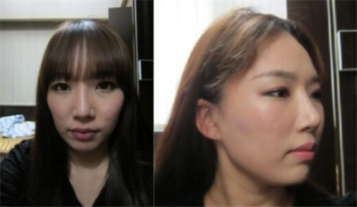韩国普罗菲耳Profile轮廓整形术前图片