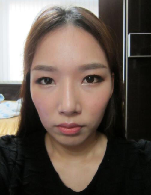 韩国普罗菲耳Profile轮廓整形术前照片