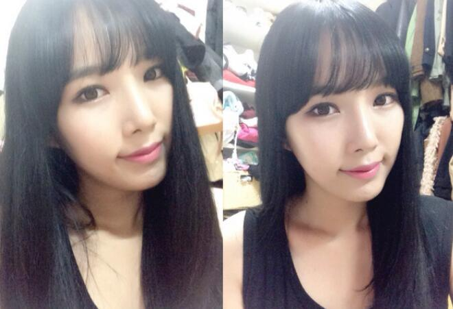 韩国普罗菲耳Profile轮廓整形术后恢复照片