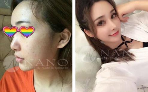 韩国NANO隆鼻前后对比图