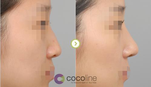韩国cocoline隆鼻案例图