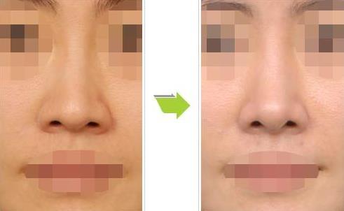 韩国cocoline隆鼻正面效果图