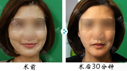 做提升脸部能维持多久