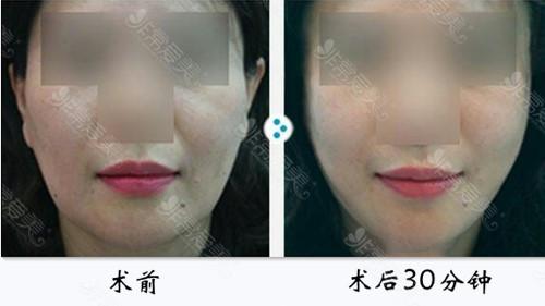 面部提升可以维持多久
