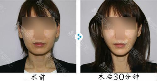 面部提升哪种方法较好