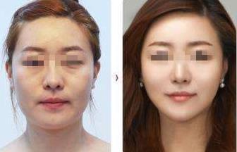 韩国拉本医院手术真人效果图